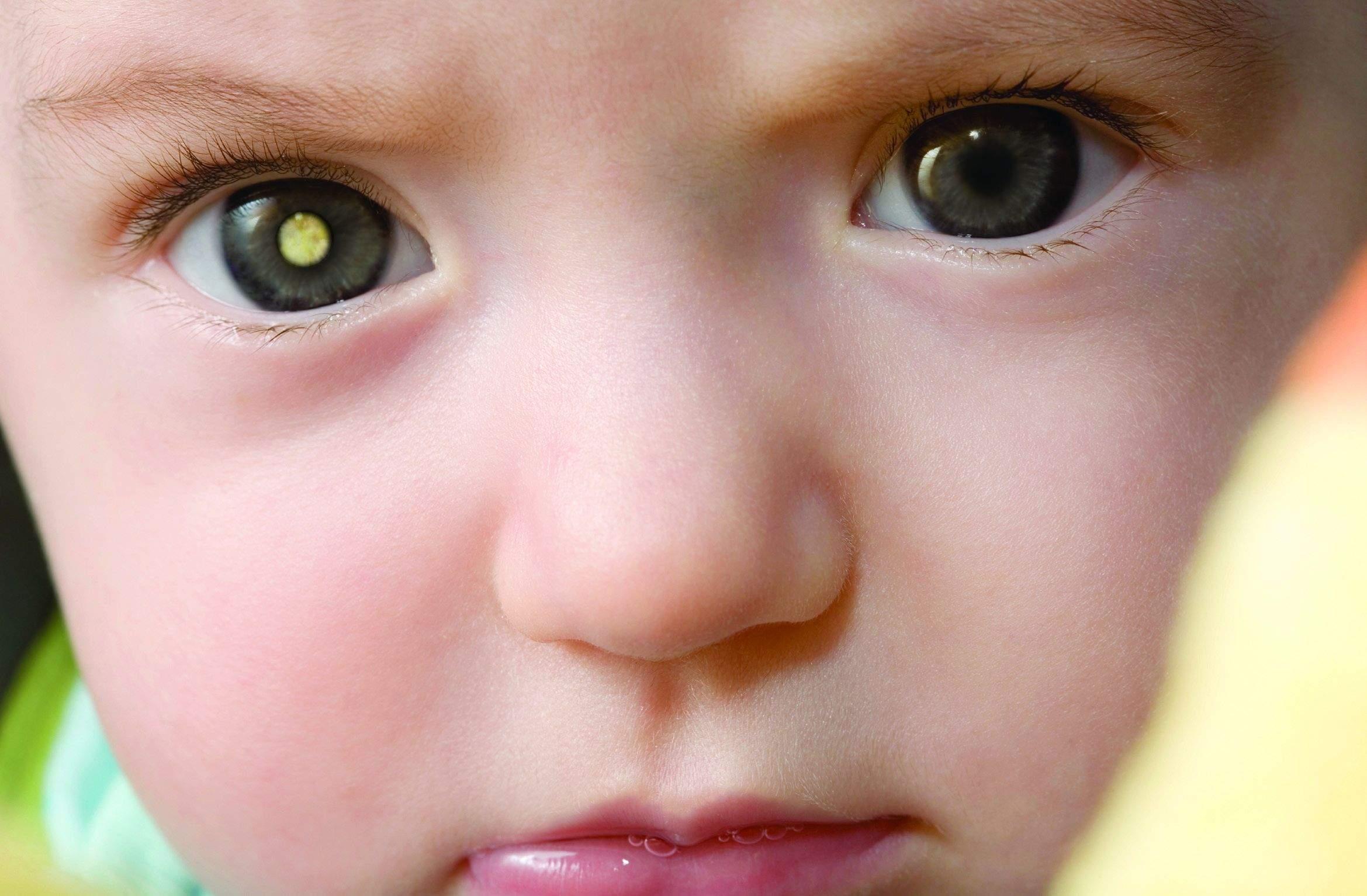 6dcbd3fb6 Crianças que estão em risco de desenvolver retinoblastoma devem receber  aconselhamento e testes genéticos o mais rápido possível para determinar o  risco da ...